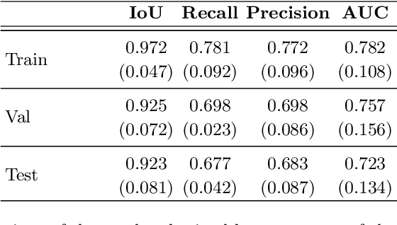Figure 4 for Spontaneous preterm birth prediction using convolutional neural networks