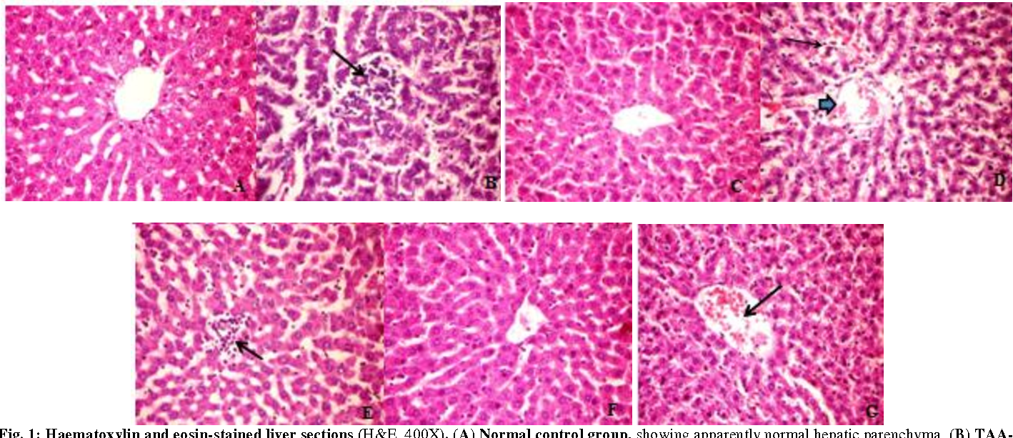Fig. 1: Haematoxylin and eosin-stained liver sections (H&E, 400X). (A) Normal control group, showing apparently normal hepatic parenchyma. (B) TAAintoxicated group, showing focal area of necrosed hepatocytes infiltrated and replaced by mononuclear inflammatory cells (arrow). (C) Alpha-lactalbumin (αLAC 100 mg/kg)-treated group after TAA, showing apparently healthy hepatic tissue. (D) Alpha-lactalbumin (α-LAC 150 mg/kg)-treated group after TAA, showing dilated central vein (arrow head) with congested hepatic blood sinusoids (arrow). (E) Vit. C (500 mg/kg)-treated group after TAA, showing focal area of leucocytic cell infiltration (arrow). (F)α-LAC (100 mg/kg) and Vit. C-treated group after TAA, showing normal histological findings. (G) αLAC (150 mg/kg) and Vit. C-treated group after TAA, showing slightly congested central vein (arrow).