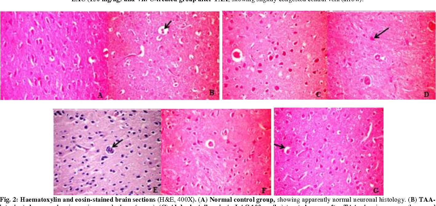 Fig. 2: Haematoxylin and eosin-stained brain sections (H&E, 400X). (A) Normal control group, showing apparently normal neuronal histology. (B) TAAintoxicated group, showing perineuronal edema (arrow). (C) Alpha-lactalbumin (α-LAC 100 mg/kg)-treated group after TAA, showing apparently normal neuronal cells. (D) Alpha-lactalbumin (α-LAC 150 mg/kg)-treated group after TAA, showing degenerated neuronal cells (arrow). (E) Vit. C (500 mg/kg)treated group after TAA, brain tissue showing focal area of leucocytic cell infiltration (arrow). (F)α-LAC (100 mg/kg) and Vit. C-treated group after TAA, showing normal neuronal cells. (G) α-LAC (150 mg/kg) and Vit. C-treated group after TAA, showing focal perineuronal edema (arrow).