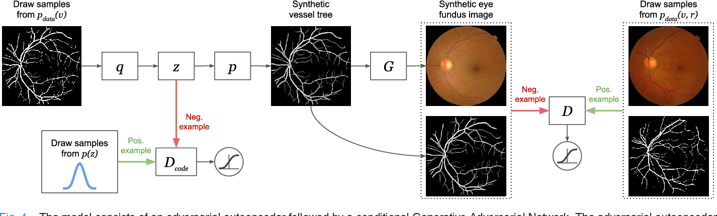Figure 4 from End-to-End Adversarial Retinal Image Synthesis