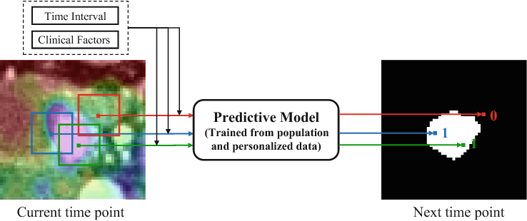 Figure 1 for Personalized Pancreatic Tumor Growth Prediction via Group Learning