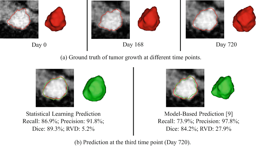 Figure 4 for Personalized Pancreatic Tumor Growth Prediction via Group Learning