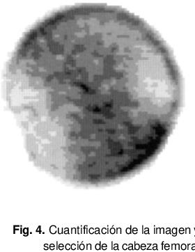 Fig. 4. Cuantificación de la imagen y selección de la cabeza femoral