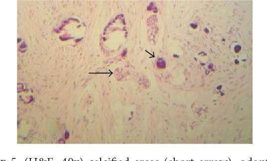Figure 5: (H&E, 40x) calcified areas (short arrow); odontogenic epithelial islands (long arrow).