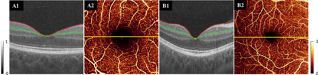Figure 1 for Reconstruction of high-resolution 6x6-mm OCT angiograms using deep learning