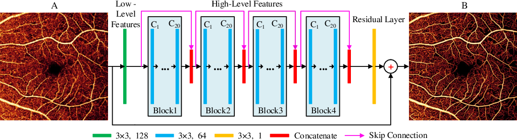 Figure 3 for Reconstruction of high-resolution 6x6-mm OCT angiograms using deep learning