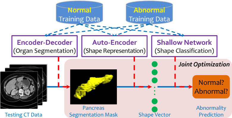 Figure 1 for Joint Shape Representation and Classification for Detecting PDAC