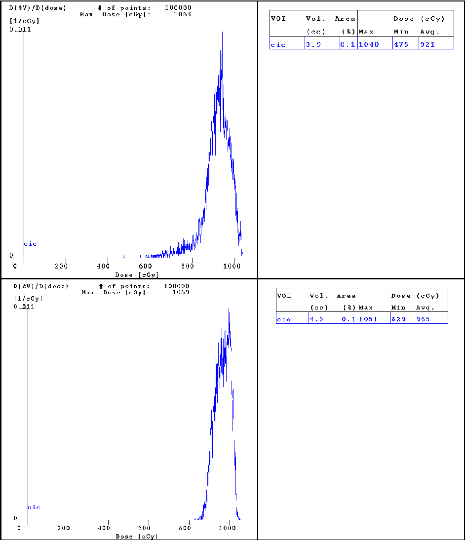 Fig. 11. DVH electrons' fields with (upper figure) and without (lower figure) artefacts