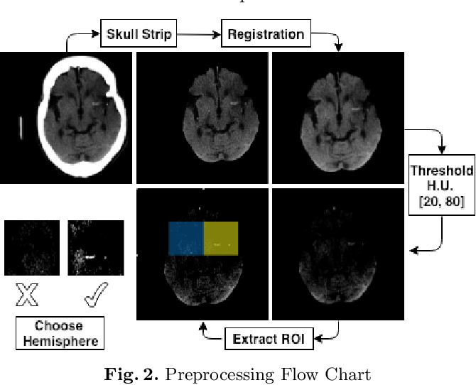 Figure 3 for Automated Computer Evaluation of Acute Ischemic Stroke and Large Vessel Occlusion