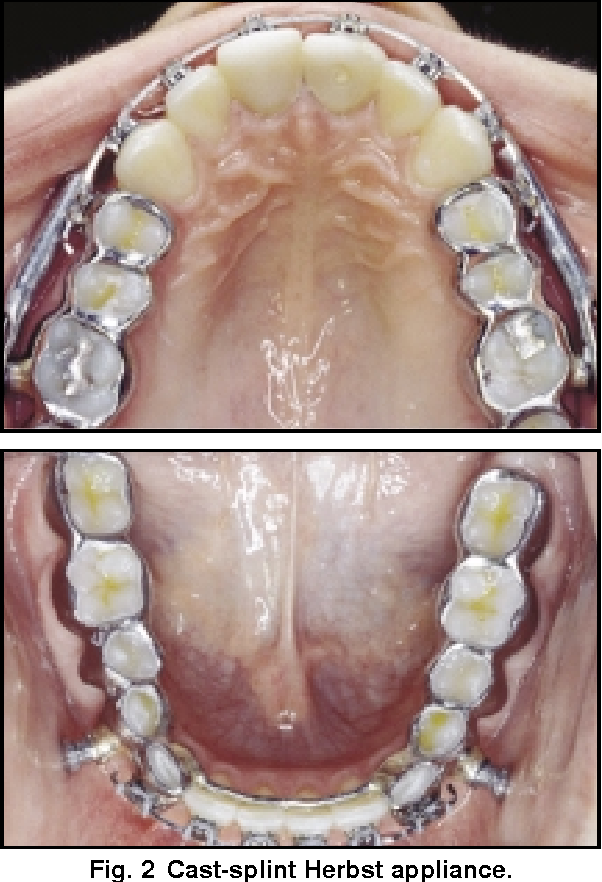Figure 2 From Complications During Herbst Appliance Treatment