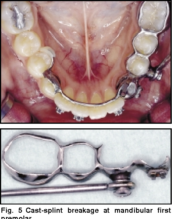 Figure 5 From Complications During Herbst Appliance Treatment
