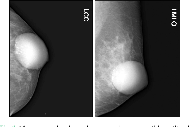 Fig. 1. Mammography showed a round, dense, smoothly outlined mass measuring 7 × 6 cm. LCC, left craniocaudal; LMLO, left mediolateral oblique.