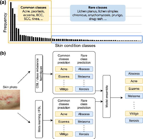 Figure 1 for Addressing the Real-world Class Imbalance Problem in Dermatology