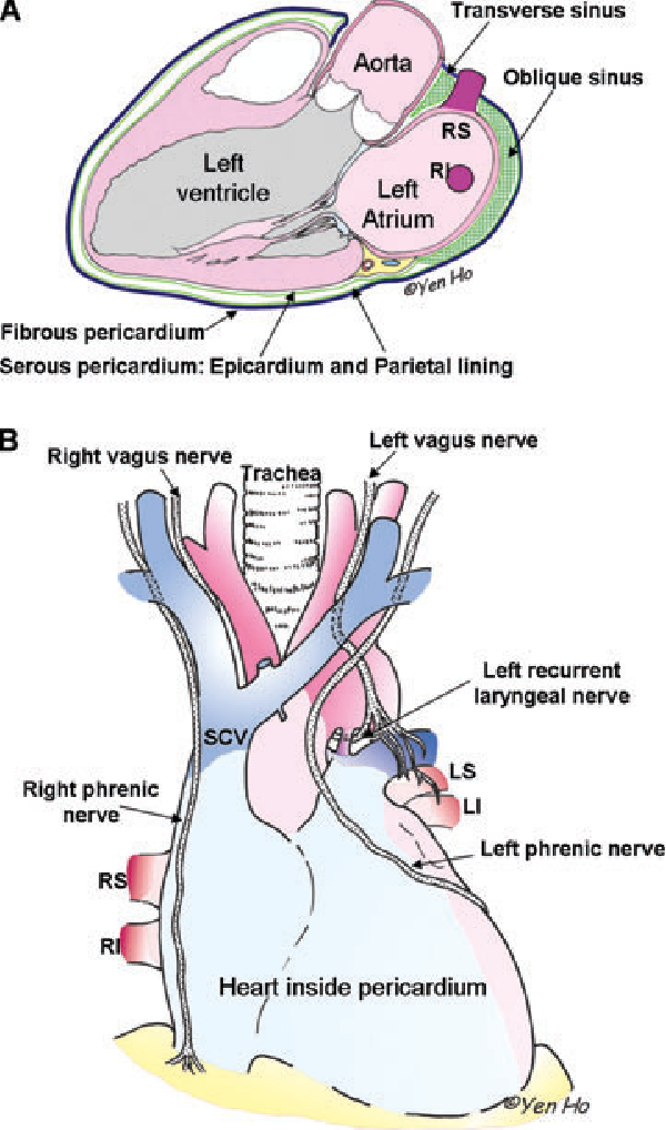 Anatomy of the left atrium for interventional electrophysiologists ...