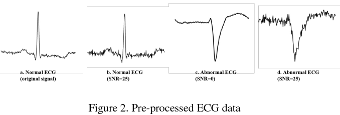 Figure 2 for A Comparison of 1-D and 2-D Deep Convolutional Neural Networks in ECG Classification