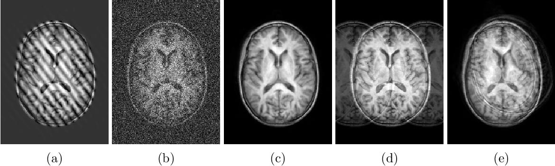 Figure 3 for A Decoupled Uncertainty Model for MRI Segmentation Quality Estimation