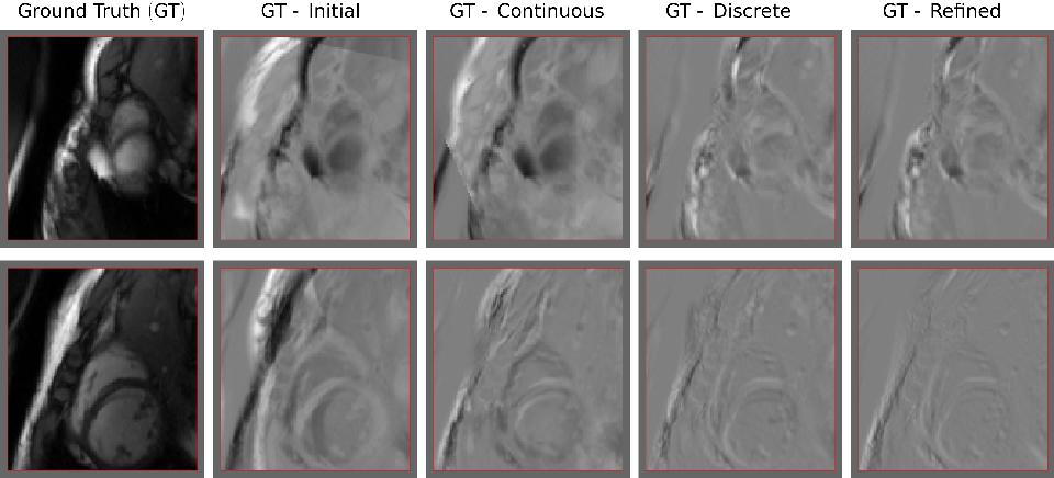 Figure 3 for Rigid Slice-To-Volume Medical Image Registration through Markov Random Fields