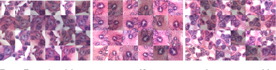 Figure 1 for Cutting out the middleman: measuring nuclear area in histopathology slides without segmentation