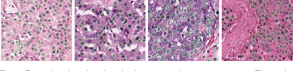 Figure 3 for Cutting out the middleman: measuring nuclear area in histopathology slides without segmentation