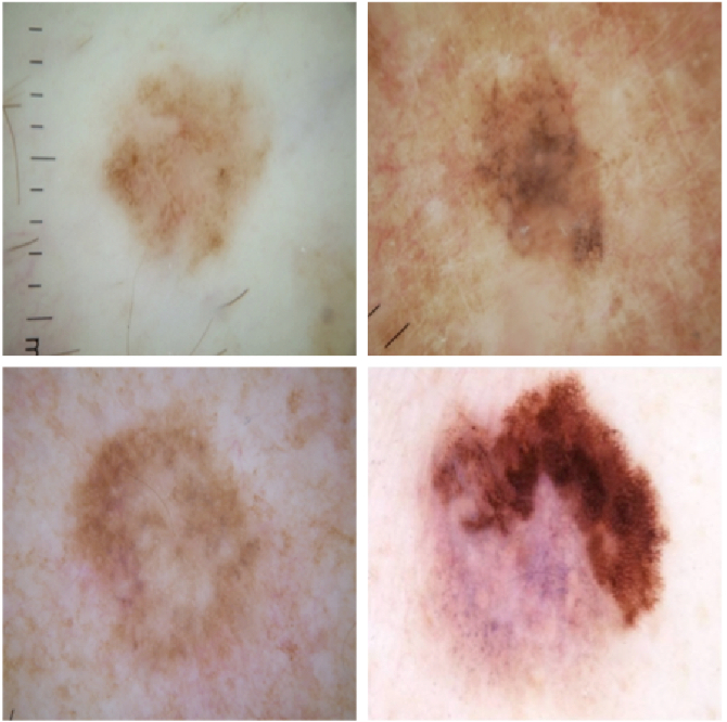 Figure 1 for Skin Lesion Analysis Toward Melanoma Detection: A Challenge at the 2017 International Symposium on Biomedical Imaging (ISBI), Hosted by the International Skin Imaging Collaboration (ISIC)