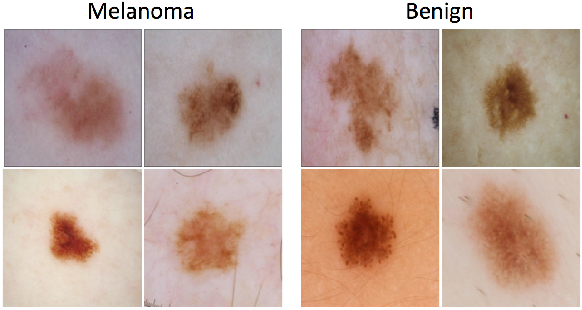 Figure 4 for Skin Lesion Analysis Toward Melanoma Detection: A Challenge at the 2017 International Symposium on Biomedical Imaging (ISBI), Hosted by the International Skin Imaging Collaboration (ISIC)
