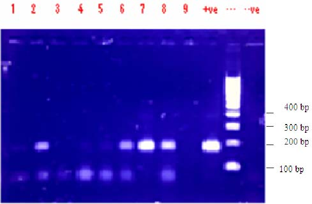 Figure 3. PCR analysis of some of the suspected samples.