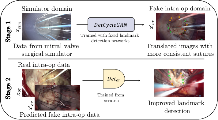 Figure 1 for Mutually improved endoscopic image synthesis and landmark detection in unpaired image-to-image translation