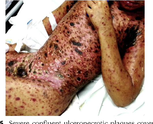 Figure 5 from A fatal case of febrile ulceronecrotic Mucha ...
