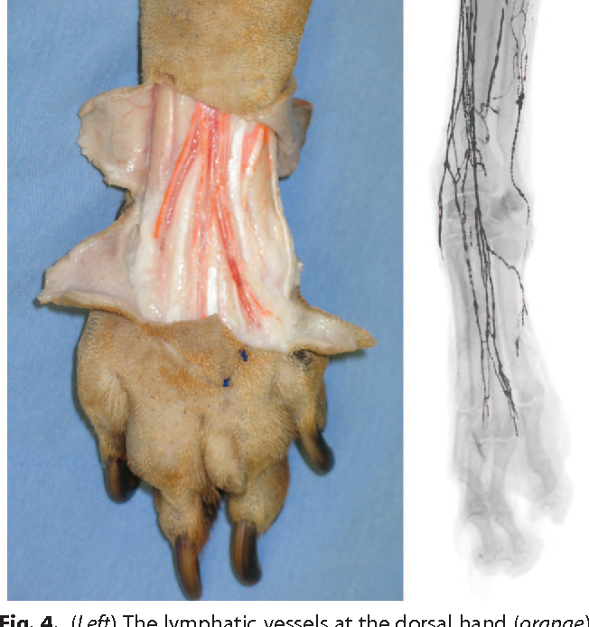 Mapping of lymphosomes in the canine forelimb: comparative anatomy ...