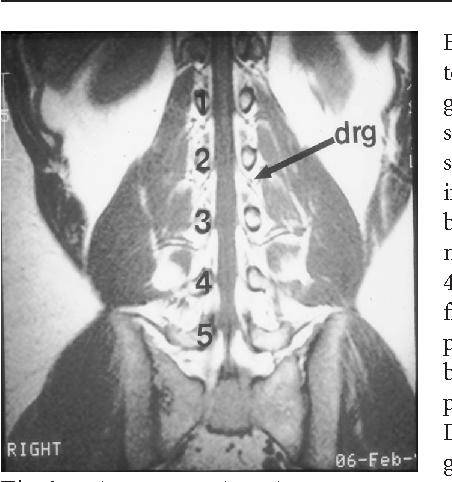 Figure 1 From Imaging In Lumbar Spinal Stenosis Semantic Scholar