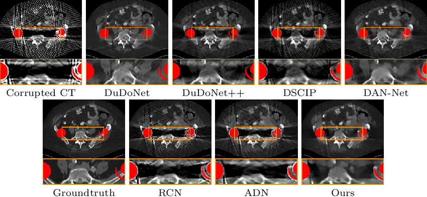Figure 3 for U-DuDoNet: Unpaired dual-domain network for CT metal artifact reduction