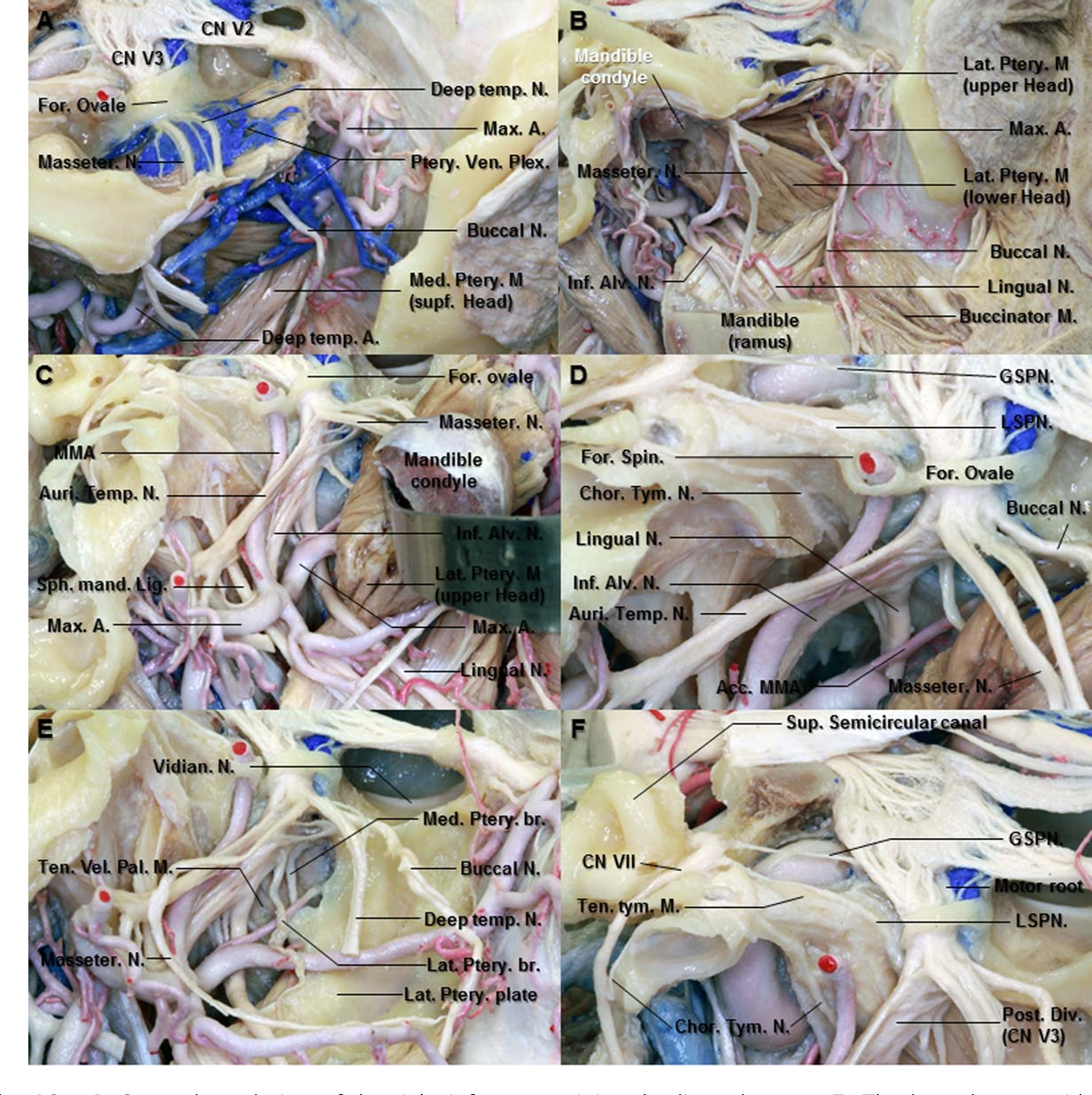 Figure 10 from Microsurgical anatomy of the trigeminal nerve ...