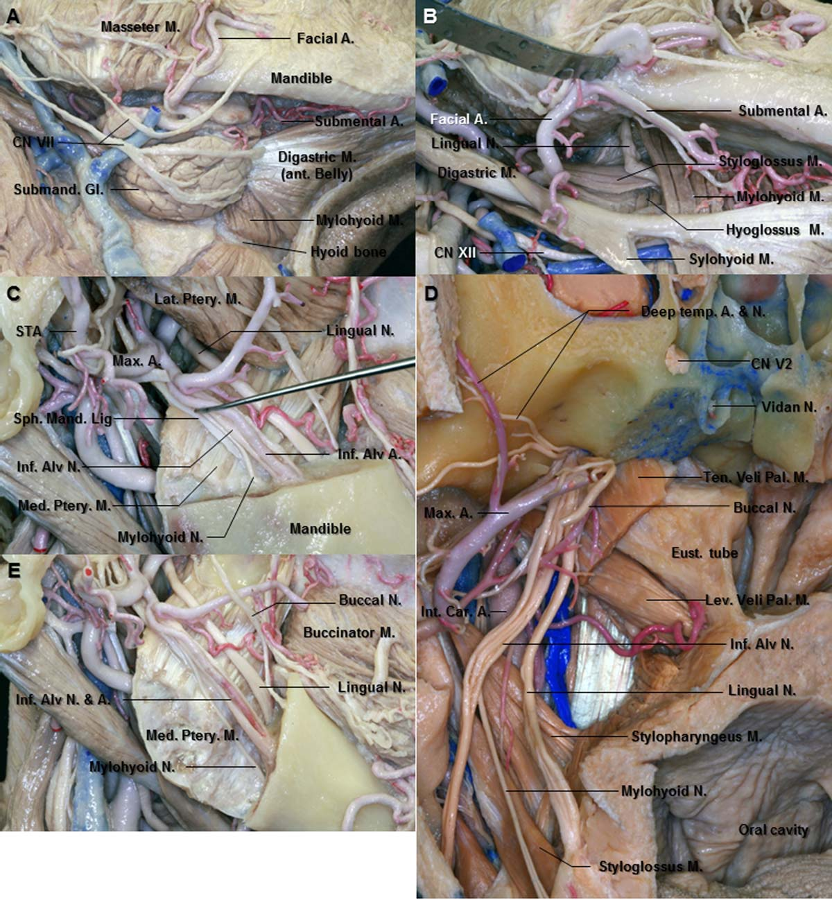 Figure 13 from Microsurgical anatomy of the trigeminal nerve ...