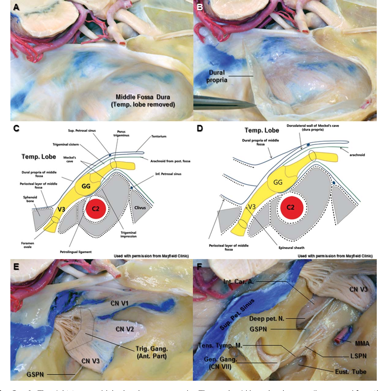 Figure 3 from Microsurgical anatomy of the trigeminal nerve ...
