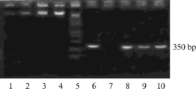Fig. 5. PCR molecular identification of the HR cultures. Lane 1—DNA of pRiA4bKan R plasmid from A. rhizogenes R1000; lanes 2, 3, and 4—the genomic DNAs from HR line 1, 2, and 3, respectively; lane 5—marker DNA; lane 6—the PCR band of the plasmid DNA (positive control); lane 7—the PCR band of the genomic DNA of the roots of the sterile seedlings (negative control); lanes 8, 9, and 10—the PCR products of the genomic DNA from HR line 1, 2, and 3, respectively.