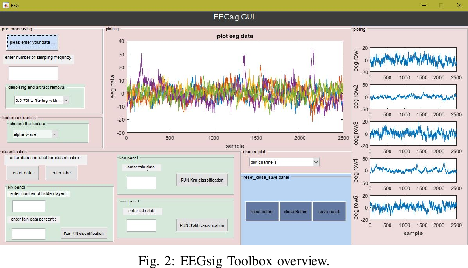 Figure 2 for EEGsig machine learning-based toolbox for End-to-End EEG signal processing
