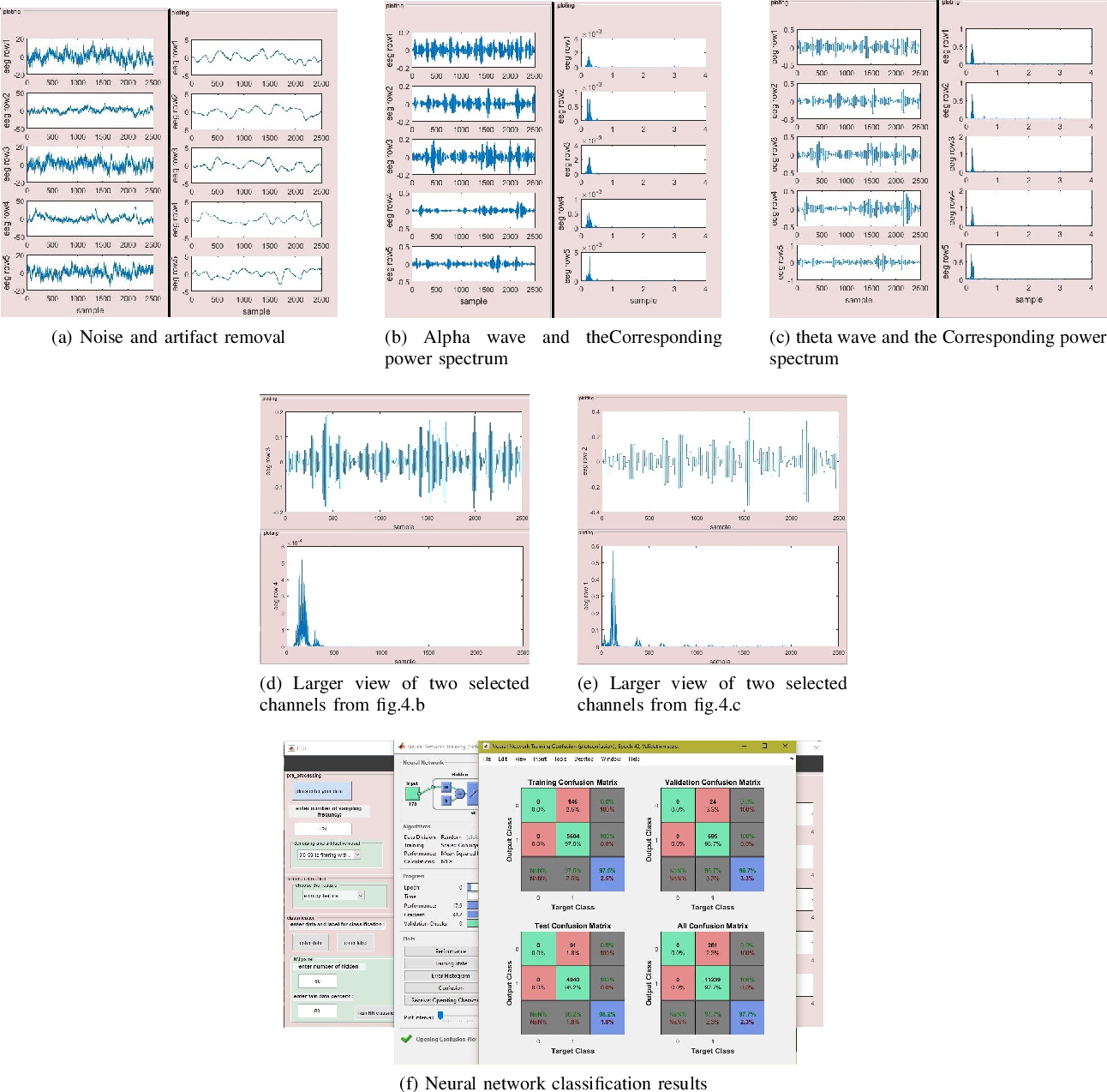 Figure 4 for EEGsig machine learning-based toolbox for End-to-End EEG signal processing