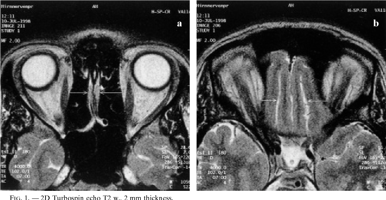 MRI detection of olfactory bulb and tract. - Semantic Scholar