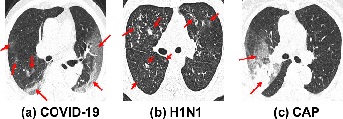 Figure 1 for M3Lung-Sys: A Deep Learning System for Multi-Class Lung Pneumonia Screening from CT Imaging