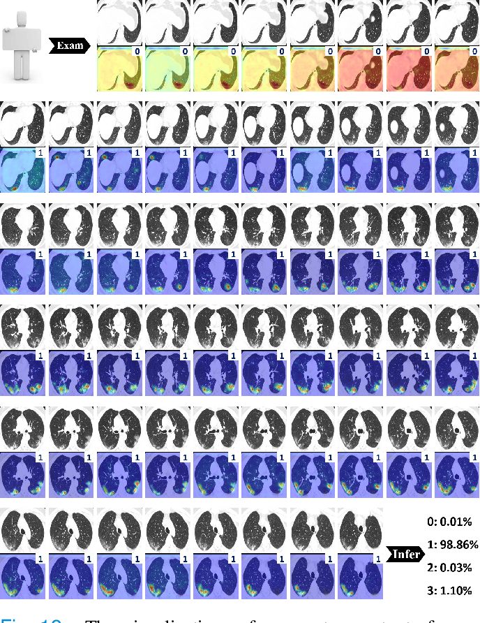 Figure 4 for M3Lung-Sys: A Deep Learning System for Multi-Class Lung Pneumonia Screening from CT Imaging