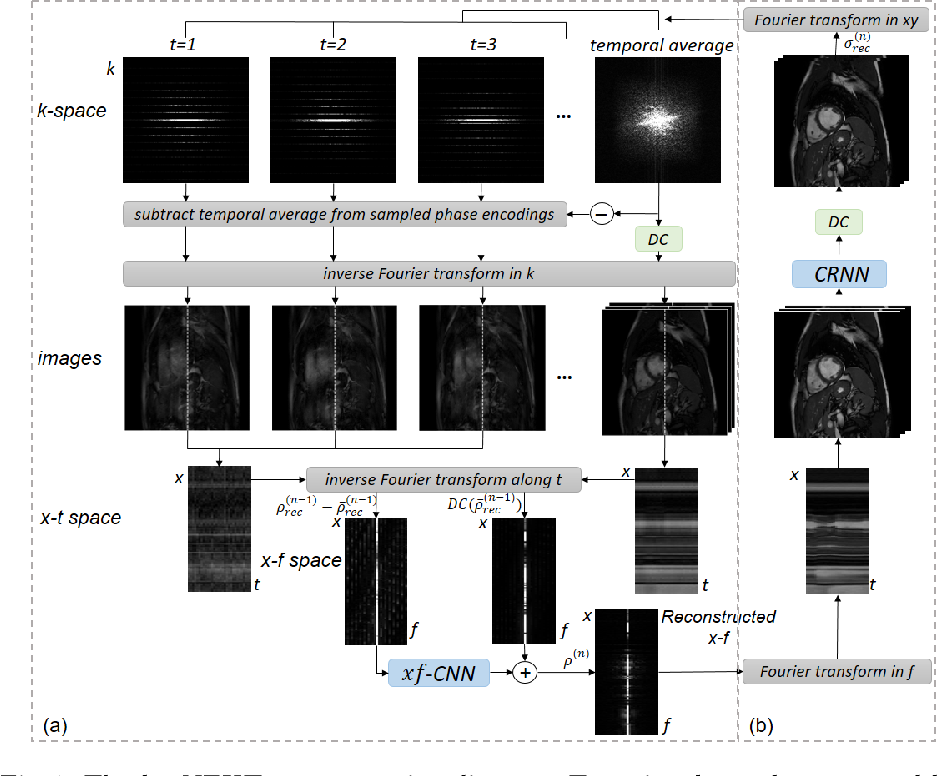 Figure 1 for k-t NEXT: Dynamic MR Image Reconstruction Exploiting Spatio-temporal Correlations