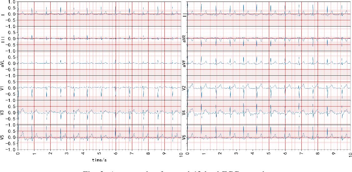Figure 3 for MLBF-Net: A Multi-Lead-Branch Fusion Network for Multi-Class Arrhythmia Classification Using 12-Lead ECG