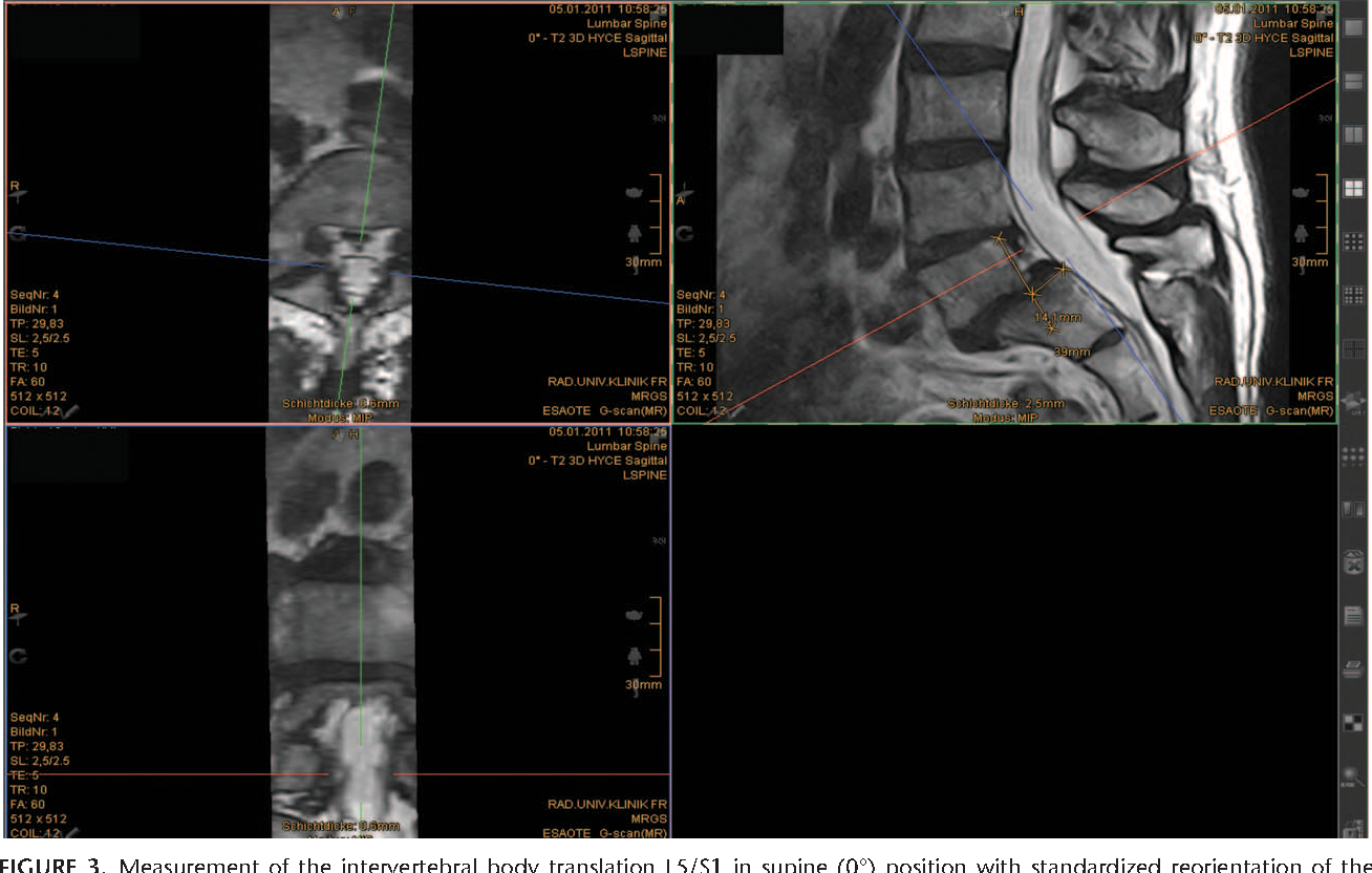 The Lumbar Spine As A Dynamic Structure Depicted In Upright Mri