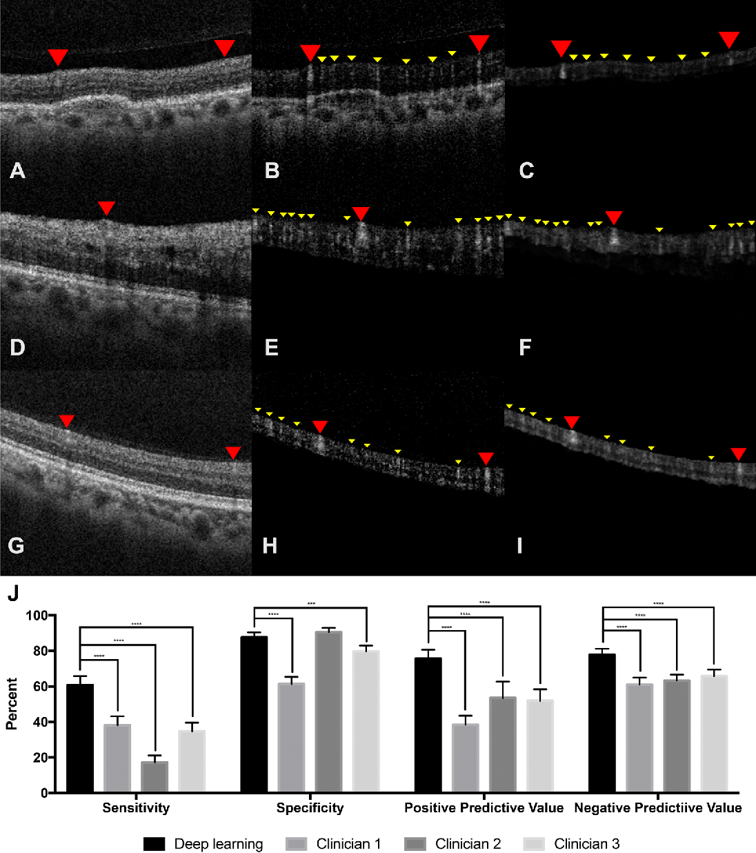 Figure 2 for Generating retinal flow maps from structural optical coherence tomography with artificial intelligence