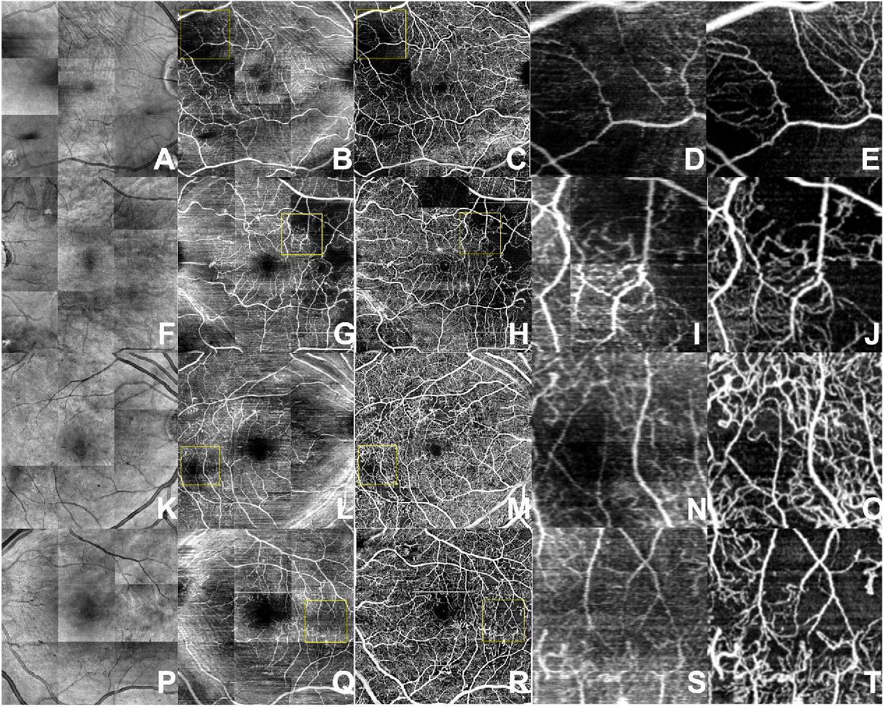 Figure 3 for Generating retinal flow maps from structural optical coherence tomography with artificial intelligence