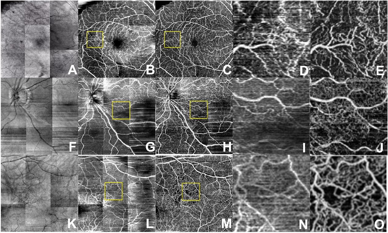 Figure 4 for Generating retinal flow maps from structural optical coherence tomography with artificial intelligence