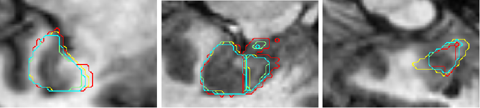 Figure 3 for Dilated deeply supervised networks for hippocampus segmentation in MRI