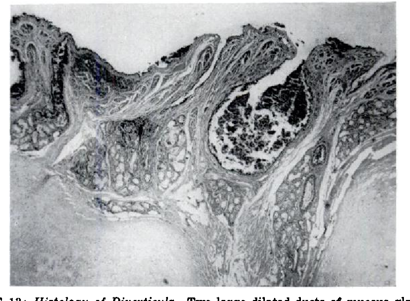 FIGURE 13: Histology of Diverticula. Two large dilated ducts of mucous glands are seen containing blood. Portions of three other ducts are seen with less evidence of dilatation. Hypertrophy of the mucous glands is evident.
