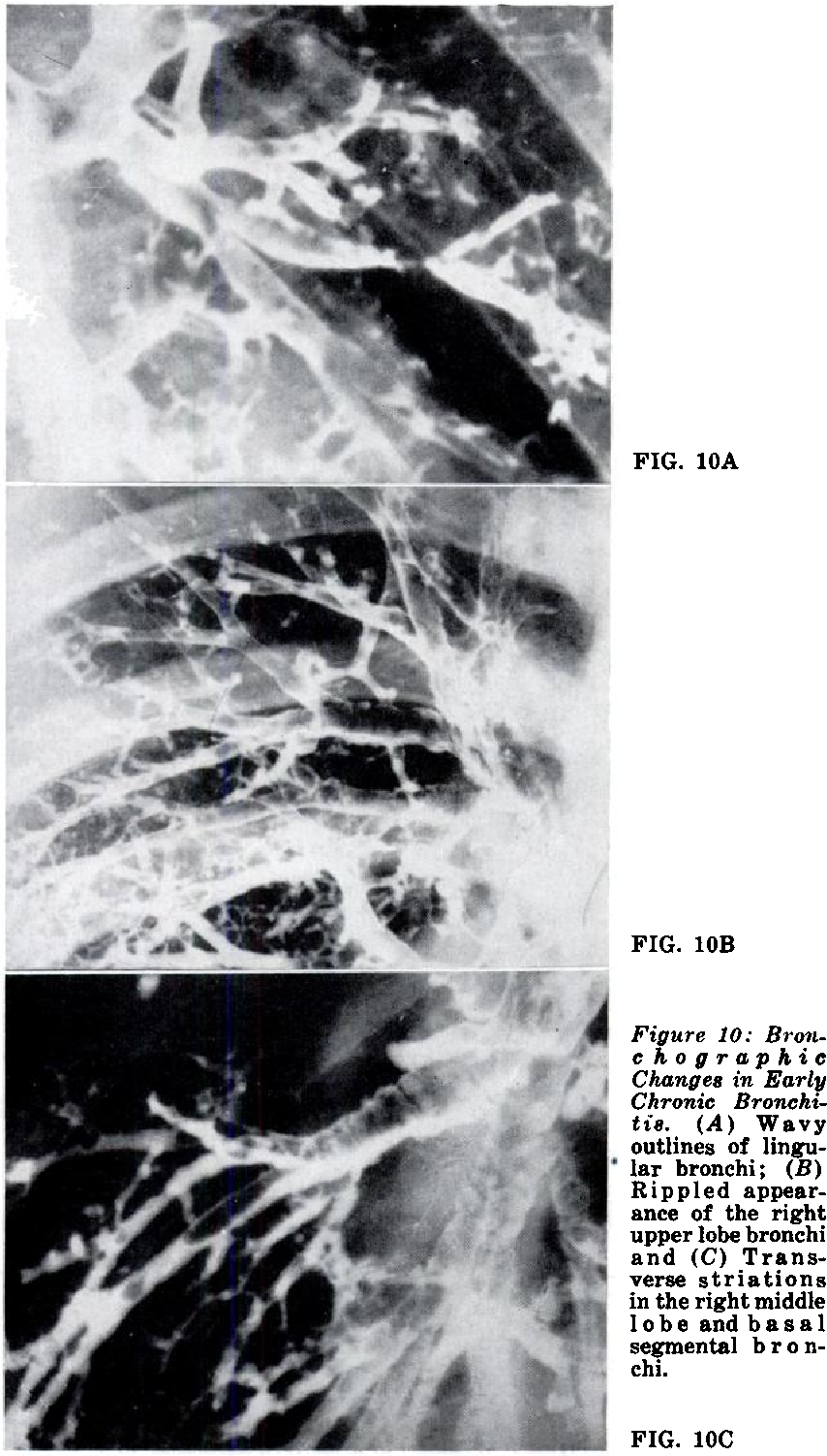 Figure 10: Branc ho graphic Change8 in Early Chronic Bronchitzs. (A) Wavy outlines of lingular bronchi; (B) Rippled appearance of the right upper lobe bronchi and (C) Transverse striations in the right middle lobe and basal segmental b r o nchi.