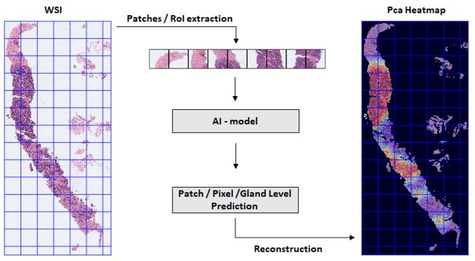 Figure 3 for Going Deeper through the Gleason Scoring Scale: An Automatic end-to-end System for Histology Prostate Grading and Cribriform Pattern Detection